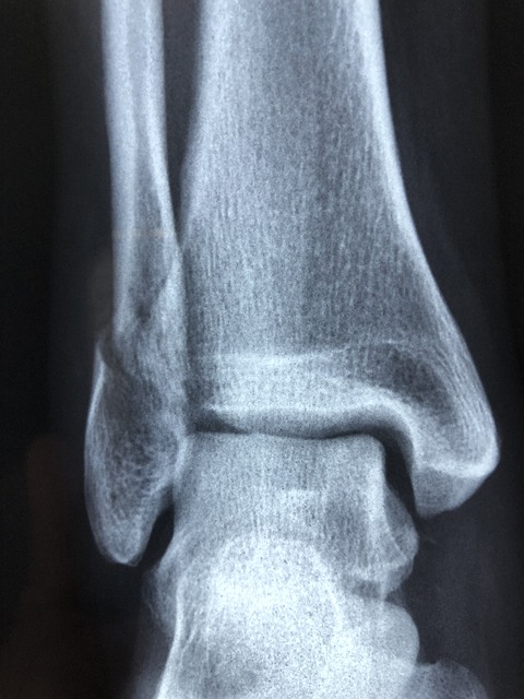 radiography-fracture